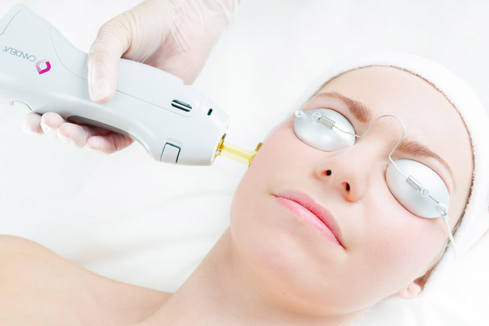 Acne Scar Reduction in Calgary